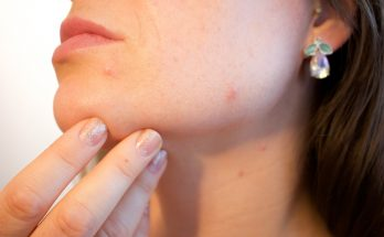 Magical Tips to fight acne